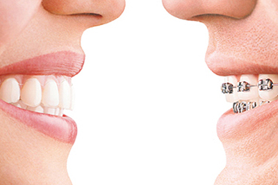 Clear Aligners Or Metal Braces? Here's How To Choose One in Rancho Mirage CA