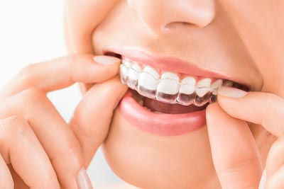 How Does Invisalign Works? | Rancho Mirage