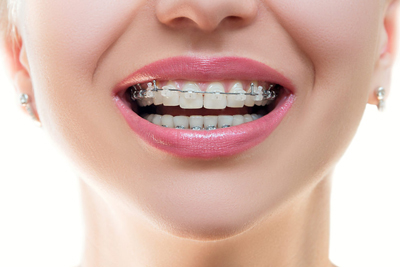 What are The Different Types of Dental Braces? | Rancho Mirage