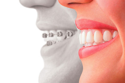 What is an Orthodontist and What Do They Do?